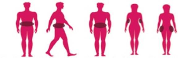 Skruostų riebalų (Bichat) šalinimas - Implantera | Pokyčių klinika